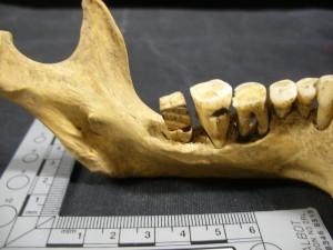 Post 16 (b) False tooth