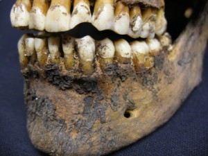 Post 33 (b) Teeth worn away by chewing on clay pipe