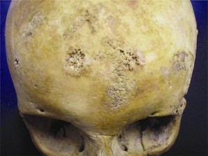 Post 52 Skull showing clear evidence of syphilis