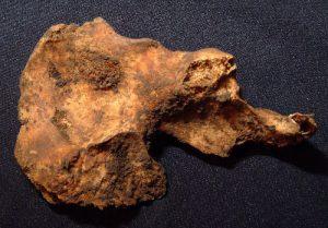 post-78-a-case-of-prostate-cancer-on-pelvic-bone-spicules-upper-left